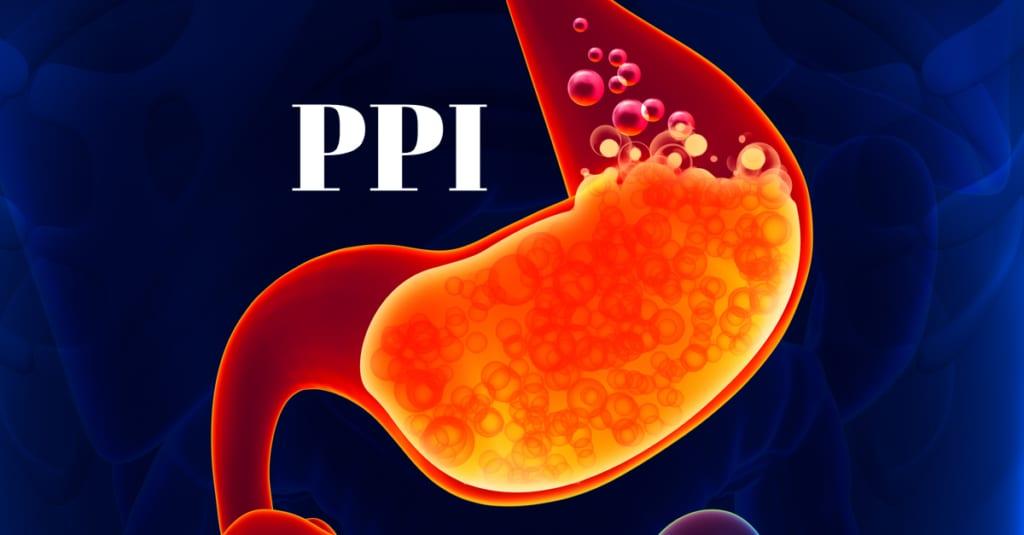 制酸剤で胃がんリスク上昇