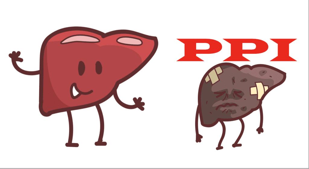 制酸剤 (PPI)と肝がん